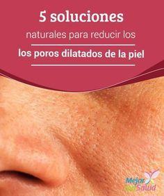 5 soluciones naturales para reducir los poros dilatados de la piel   Algunos remedios naturales pueden ayudar a reducir los poros dilatados de la piel. En esta ocasión te compartimos 5 soluciones caseras.