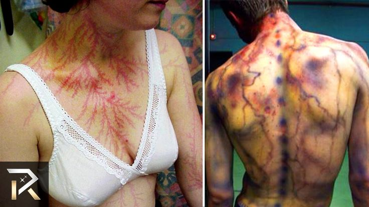 People Who Got Struck by Lightning! (30 Facts You Won't Believe!)
