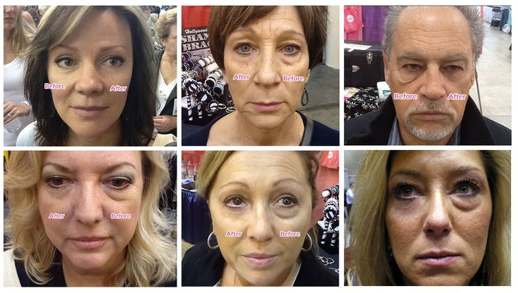 #instantlyageless #before #after #pic #amazing #right #now #results #seeing #is #believing #love #picoftheday