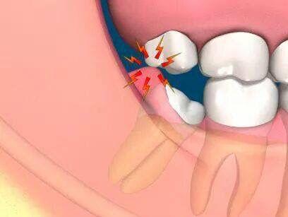 """Esto y más puede ocasionar los terceros molares (cordales), Cuando tu odontólogo te dice:  """"hay que extraer"""" Hay que extraer!"""