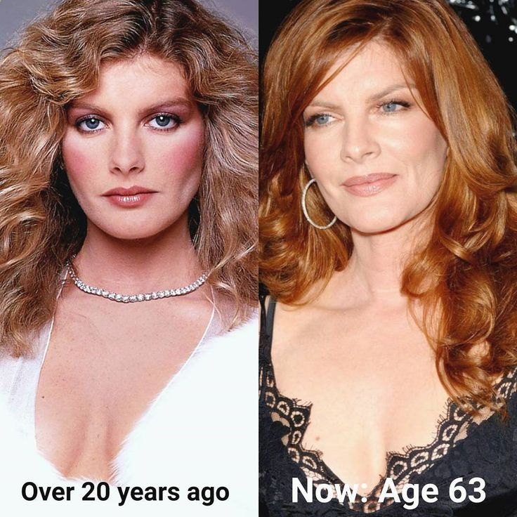 Monday motivation: Age gracefully and with a little help age beautifully!��, for example Rene Russo ������ Discover all we can do to maintain your #natural #beauty at @zaframedical we'll be #happy & #love to help you select the ideal treatment for you #aesthetics #celebrity #famous #kardashian #jenner #beautiful #women #men #rejuvenation #healthy #youth #body #face #injectionbeauty #skincare #beautiful #dermalfiller #beforeandafter #instagood #instadaily #instaglam #picoftheday #beposi...