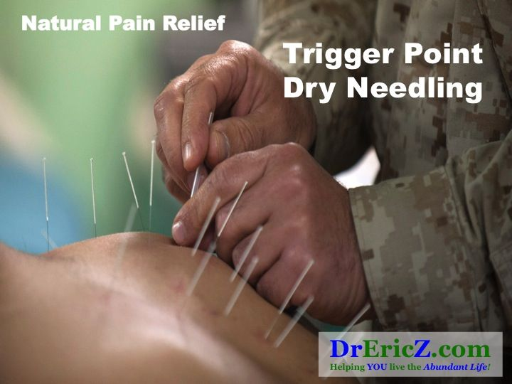 Could Trigger Point Dry Needling Be YOUR Natural Pain Solution?