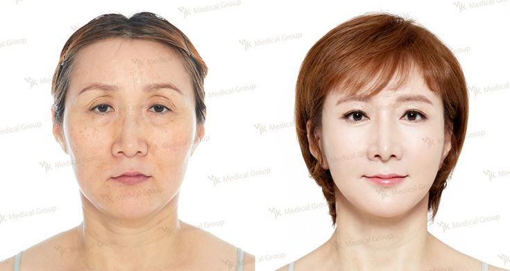 Anti-Aging Eye Surgery, Mini Lifting