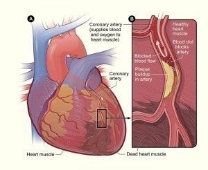 Heart Blockage Symptoms,Causes, Treatment and Prevention