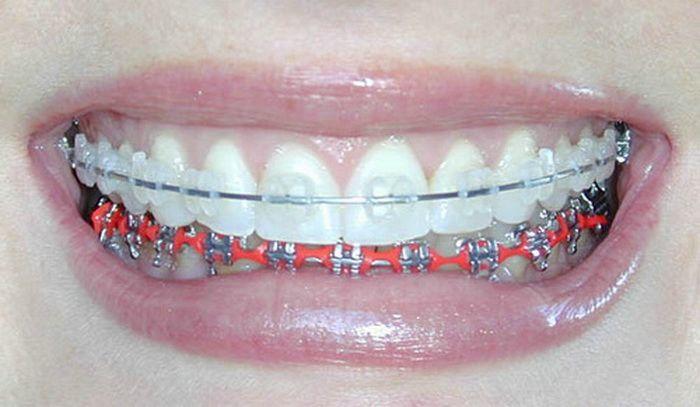 Teeth Braces Colors