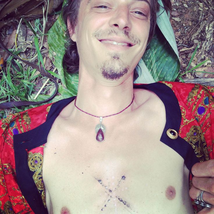 Person ready to receive Kambo on the chest after receiving superficial burns in the shape of a cross.