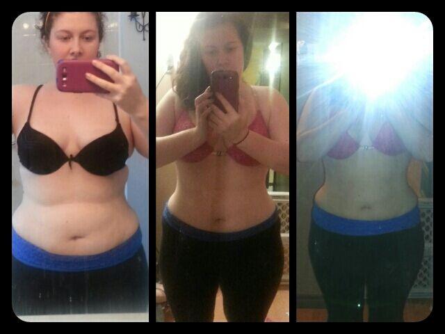 Oklahoma city weight loss surgery