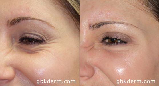 Botox results will take a couple of week to indicate. If you're not seeing best results once per week.We recommend you to  visit at our Cosmetic  Laser Dermatology in San Diego.
