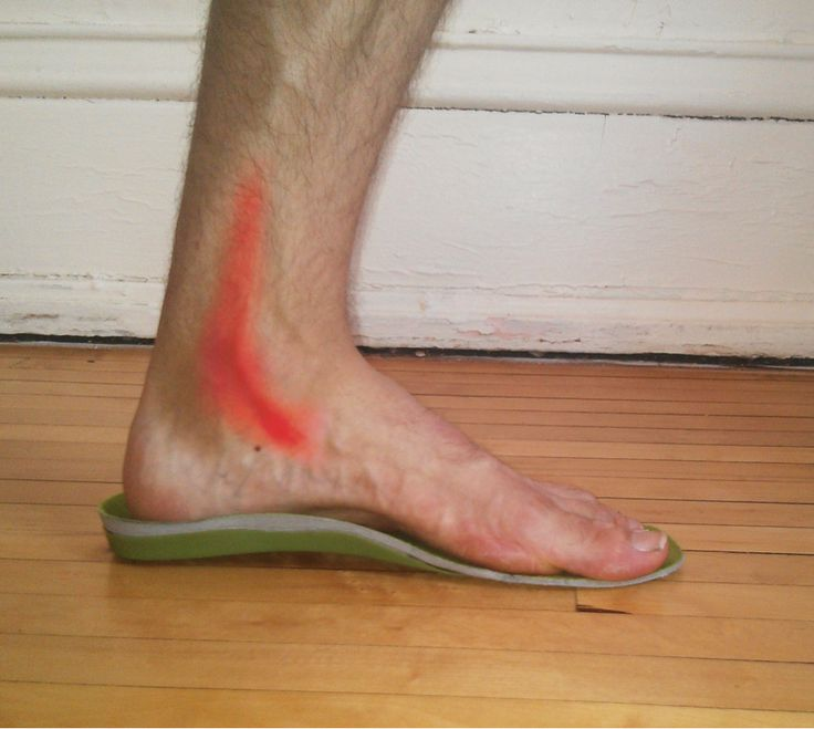 4 Ways to Prevent and Treat Posterior Tibial Tendon Pain - Runners Connect