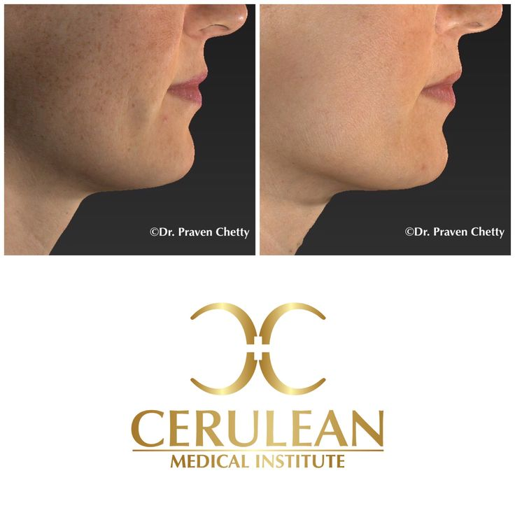 IPL Photorejuvenation treatment for brown spots on the face by Dr. Praven Chetty at Cerulean Medical Institute In Kelowna BC #IPL #IntensePulsedLight #Photorejuvenation #Photofacial #BrownSpots #AgeSpots #LiverSpots #DrPravenChetty #CeruleanMedicalInstitute #Cosmetic #Dermatology #SkinCare #RealSelf #TopDoctor #Kelowna #BC