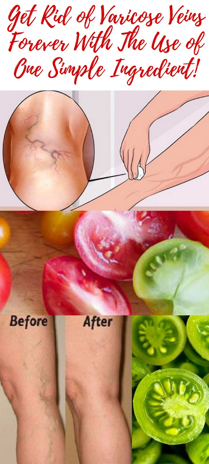 Get Rid of Varicose Veins Forever With The Use of One Simple Ingredient!