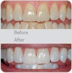 Utilisez un peu de dentifrice, mélanger dans un bicarbonate de soude de cuillère à café, plus une cuillère à café de peroxyde d'hydrogène, une demi-cuillère d'eau. Bien mélanger puis brossez vos dents pendant deux minutes. N'oubliez pas de le faire une fois par semaine jusqu'à ce que vous avez atteint les résultats que vous voulez. Une fois que vos dents sont bonnes et blanc, limitez-vous à l'aide du traitement de blanchiment, une fois tous les mois ou deux.