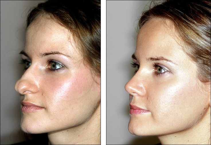 17 Best Images About Nose Job Examples On Pinterest