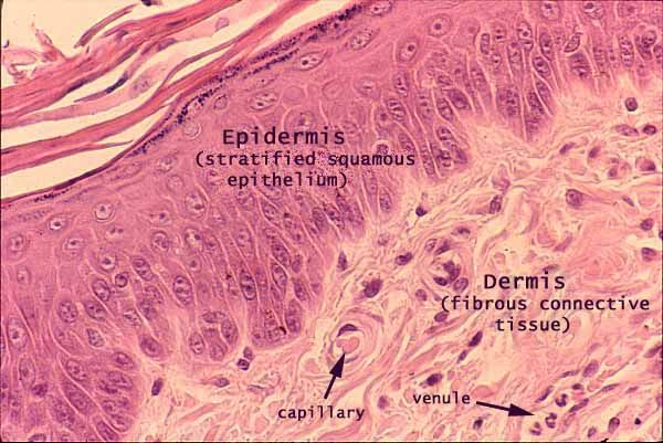 Keratinized Stratified squamous epithelium. Description: Provides protection of underlying tissue from pathogen and desiccation. Location: Epidermis