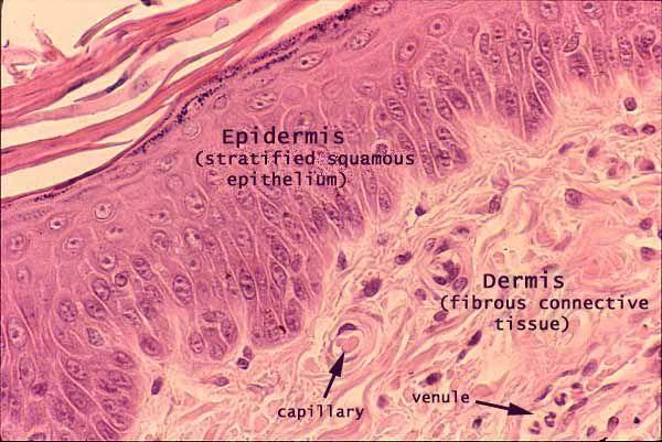 Stratified squamous keratinizing epithelium.