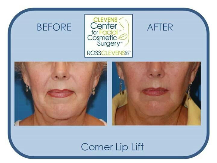 before and after plastic surgery corner lip lift by dr clevens drclevens surgery. Black Bedroom Furniture Sets. Home Design Ideas