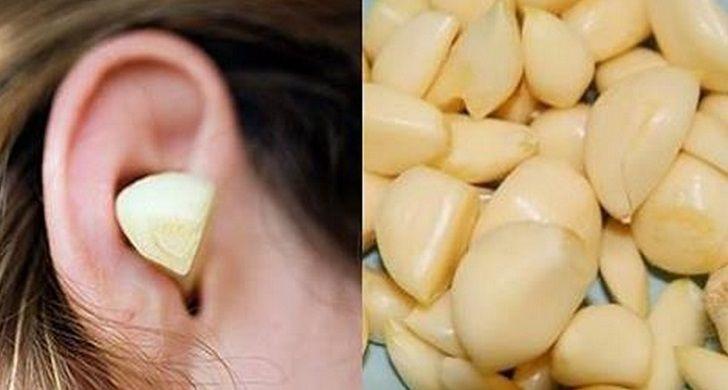 l'aglio, con l'applicazione mirata all'orecchio è un eccellente antibiotico naturale che riesce ad alleviare il mal d'orecchi e rimuovere il cerume