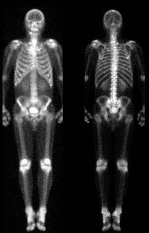Nuclear Medicine image of a whole body bone scan...indicating of any 'abnormal' increased bony activity....such as fracture, metastatic disease, infection or tumor.