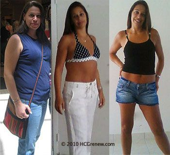 hcg drops weight loss success stories
