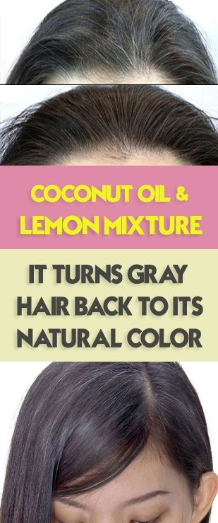 Home Remedy: #Coconut_oil And #Lemon Mixture Will Turns Gray #Hair ...