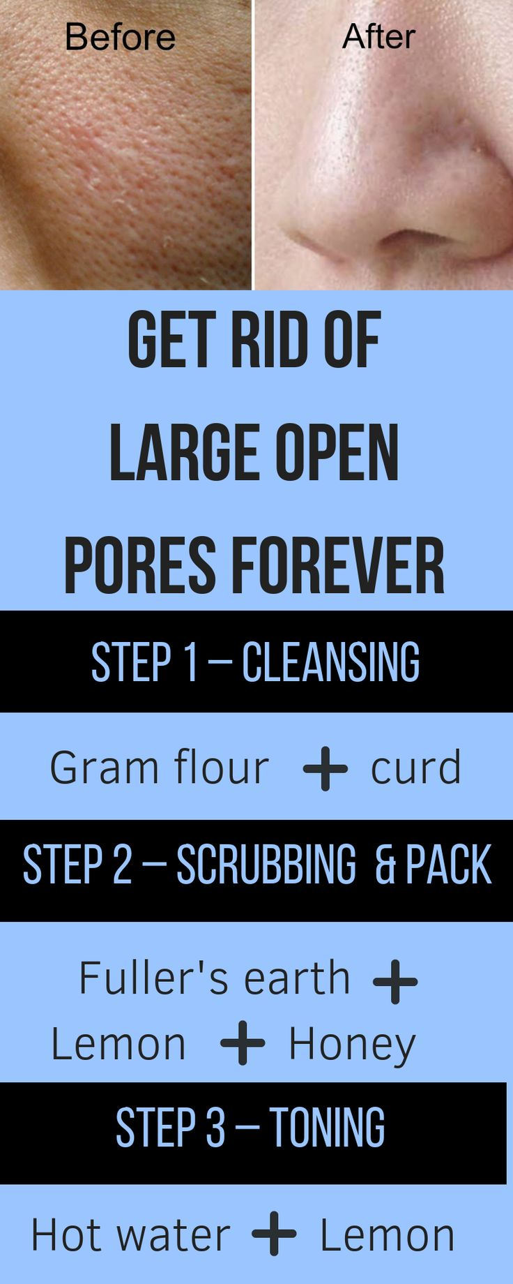 Get rid of large open pores forever