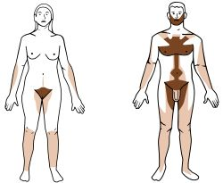 Body Hair, or Androgenic Hair-- is the terminal hair that develops on the human body during and after puberty. It is differentiated from the head hair and less visible vellus hair, which are much finer and lighter in color. The growth of androgenic hair is related to the level of androgens (often referred to as male hormones; due to the production levels in males being higher on average, but it is actually present in both sexes, and therefore is a unisex hormone) in the individual.