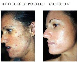 Review: Perfect Derma Peel, When Your Face Needs A Reboot