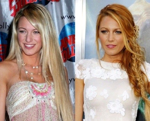 12 Celebs Who Have Spent The Most Cash On Plastic Surgery
