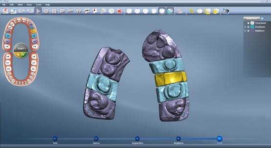 Each tooth position is assigned on #DentalCad