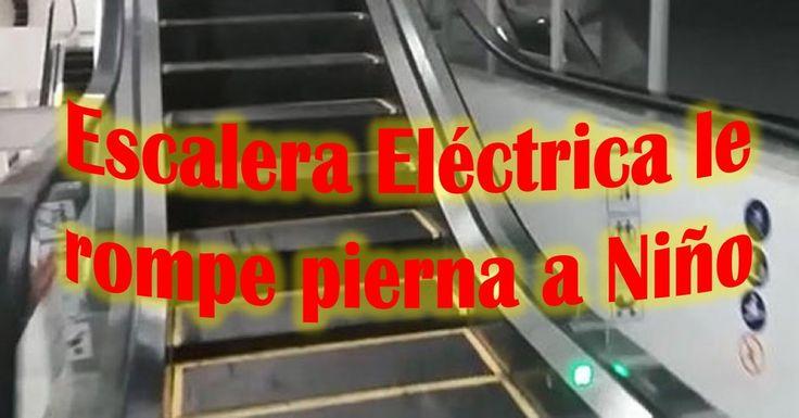 Escalera Electrica rompe pierna a Niño                              …