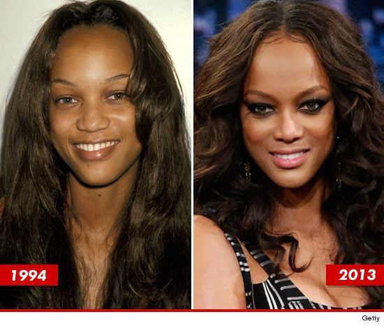 91 Best Images About Plastic Surgery,good And Bad On
