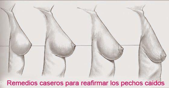 TU SALUD: Remedios caseros para reafirmar los senos caidos