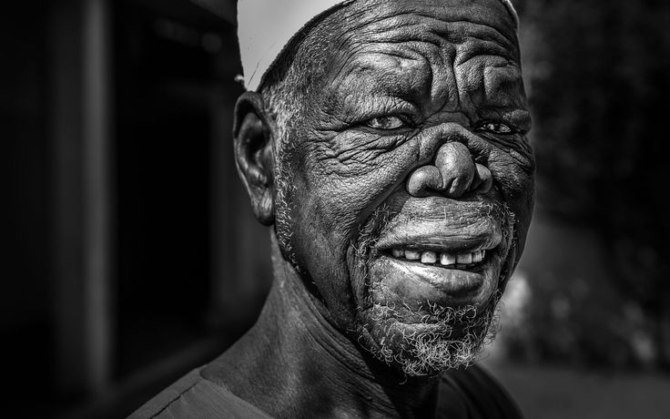 Man with Leprosy by Stefan Radi on 500px