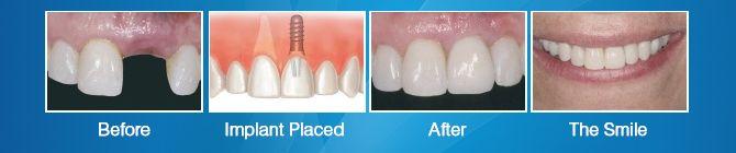 Dentists Cosmetic Dentistry  http://anamedglobal.com/advanced_dental_treatment.aspx