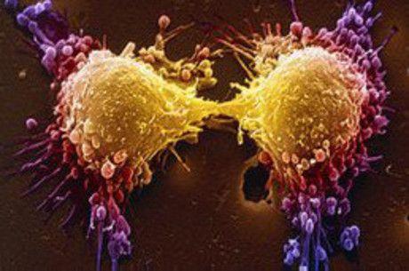 'Nariz eletrônico' é capaz de detectar câncer de próstata, diz estudo   Portal PcD On-Line