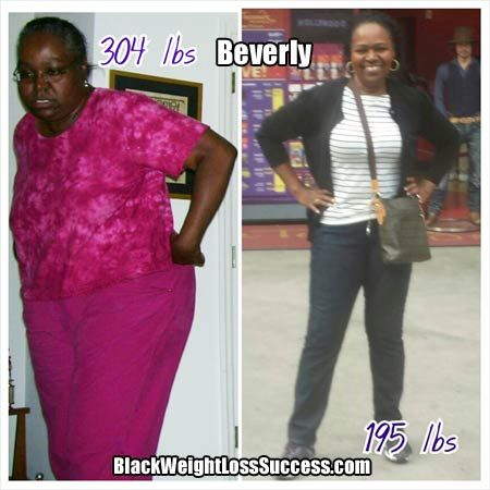 Video: Beverly lost 109 pounds with Dr. Ian's Shred Program