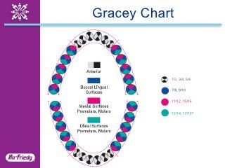 Hu-Friedy Universal and Gracey Curettes - Clinical Application Guide