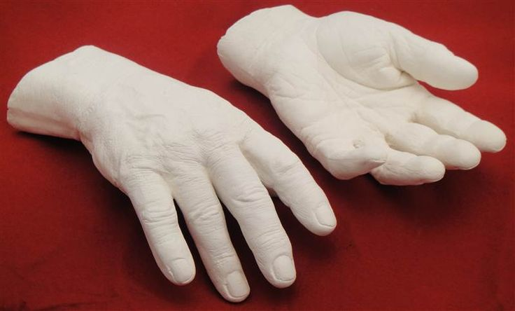 Plaster casts of Pierrepoint's Albert Pierrepoint'shands (plaster cast)