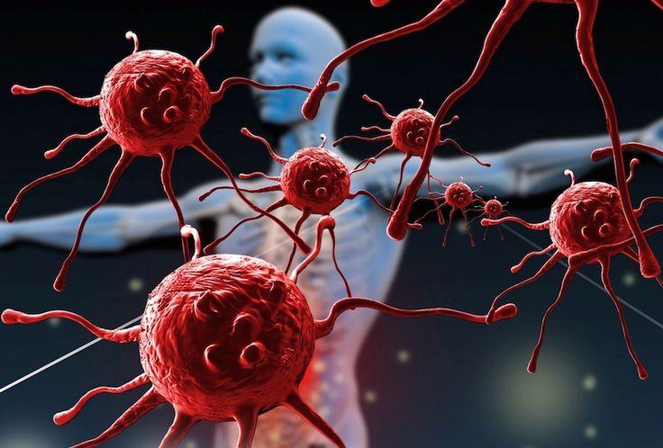 "Buscan ""reprogramar"" ganglios linfáticos para curar enfermedades autoinmunes"