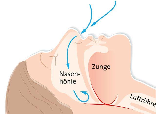 Wenn in Rückenlage die Zunge nach hinten fällt, kann die Engstelle (rot) den Luftstrom (blaue Pfeile) behindern. Die Folge: Schnarchen oder sogar Atemaussetzer