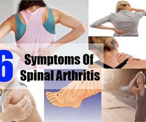 Six Important Symptoms Of Spinal Arthritis - How To Identify Symptoms Of Spinal Arthritis | Arthritis & Body Pains