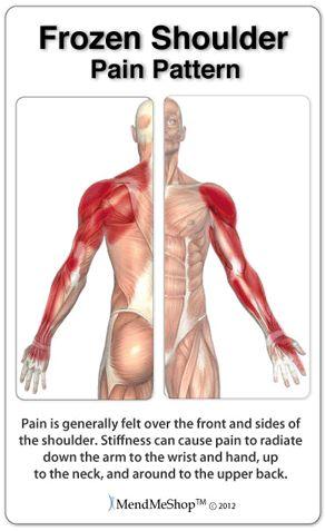 Pain patterns frozen shoulder.
