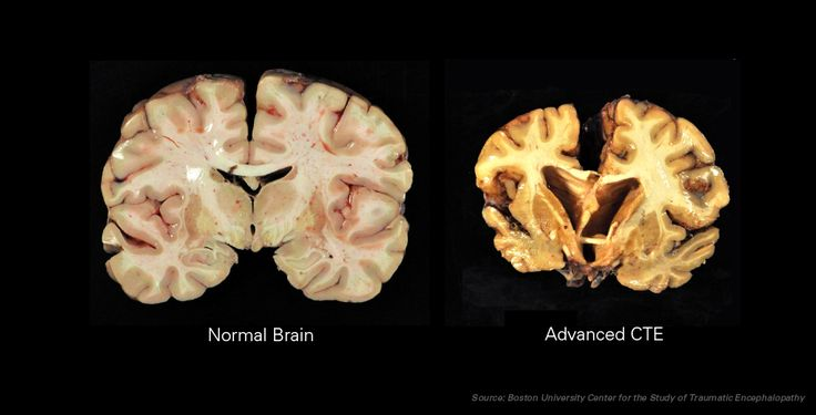 How CTE Affects the Brain