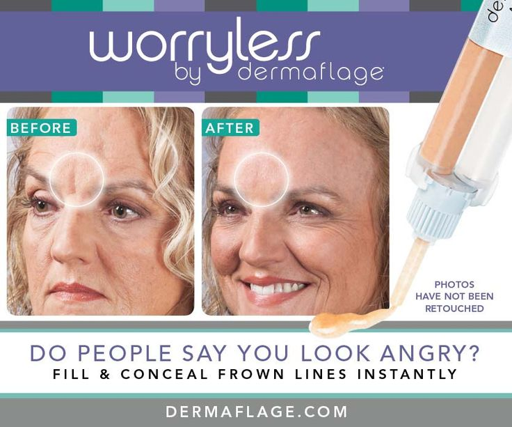 There are a lot of anti-aging skincare products out there claiming to minimize wrinkles and many people ask themselves which is the best wrinkle filler? Which actually work? How long do they take and do they actually make wrinkles disappear? We've got some answers for you.