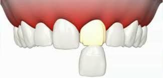 Facette dentaire Tunisie
