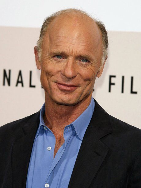 15 Best Hairstyles and Haircuts for Balding Men ...