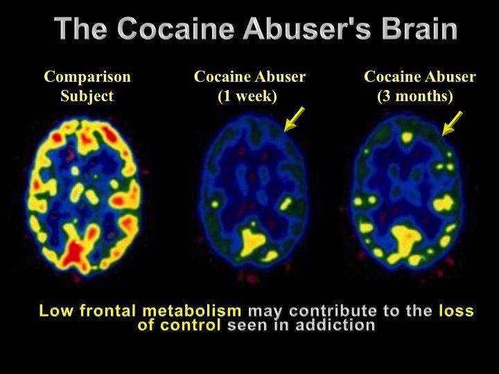 Cocaine Rehab Blog How Cocaine Affects The Brain