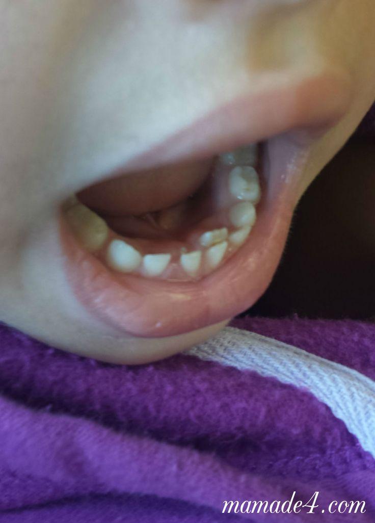 Sus primeros dientes permanentes