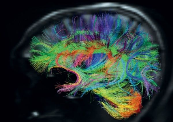 The brains nerve fibres traced by diffusion spectrum imaging, and coloured to represent their direction. lumosity
