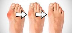 """Comment soigner un oignon au pied naturellement ? (Hallux Valgus) Remèdes de grand-mère pour apaiser la douleur et réduire taille de l""""oignon"""